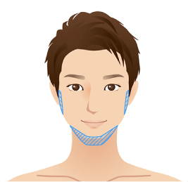 フェイスライン(顎下〜耳下線)<